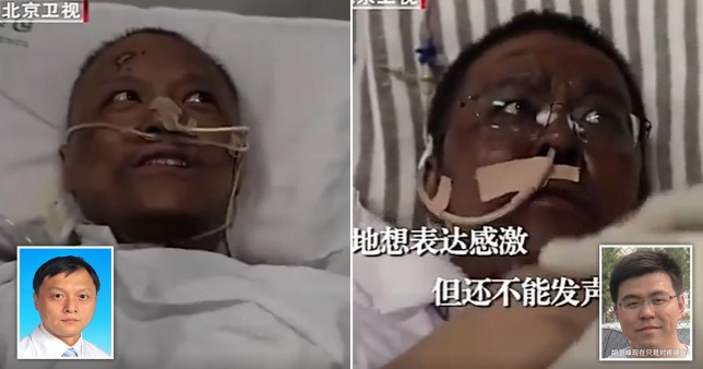 Two Chinese Doctors Turn Black After Recovering From COVID-19