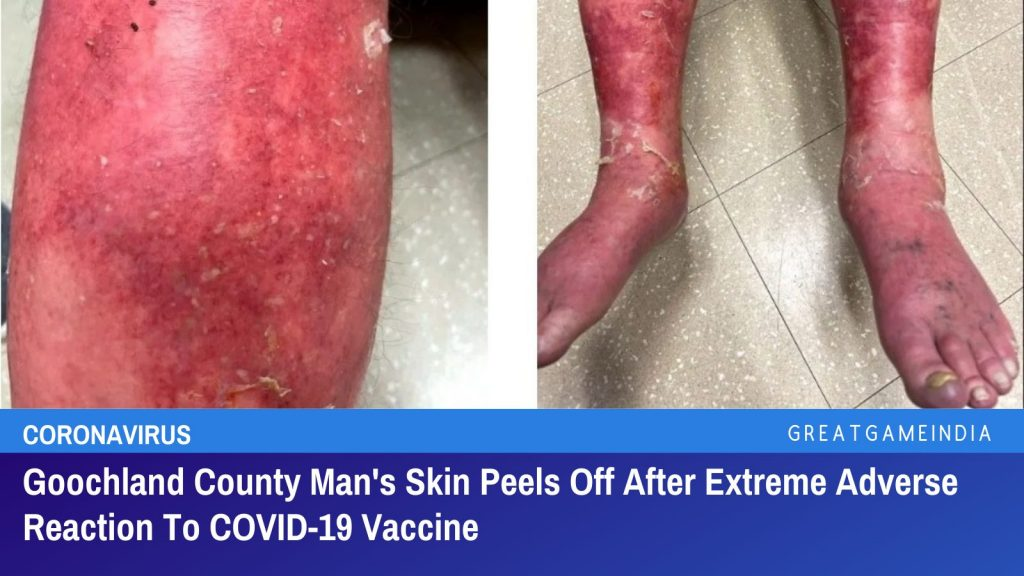 Goochland County Man's Skin Peels Off After Extreme Adverse Reaction To COVID-19 Vaccine