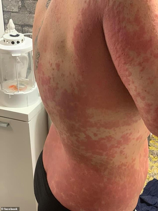 Woman Suffers Unbearable Burning Red Rash On Body From AstraZeneca